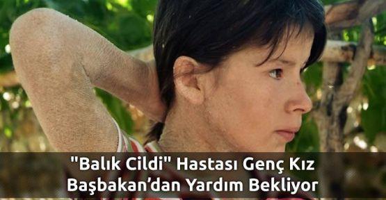 BU KIZ BAŞBAKAN'DAN YARDIM İSTİYOR